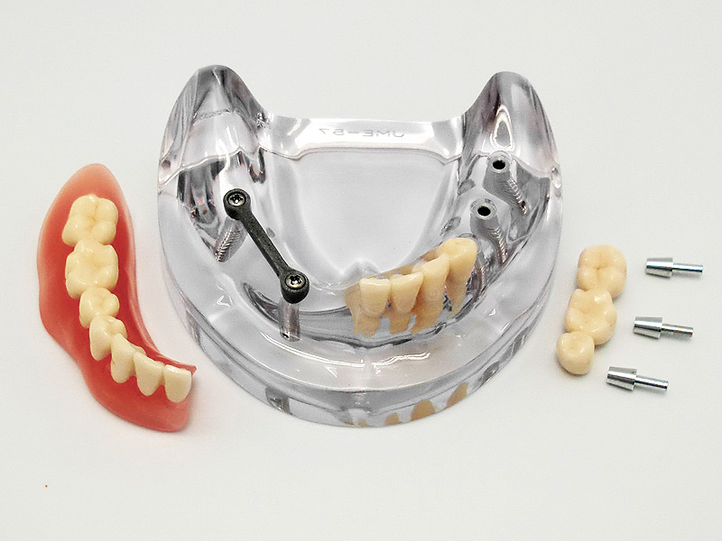 Morita / Nissin Implantat-Zahnmodell, Unterkiefer <8571> zur ...